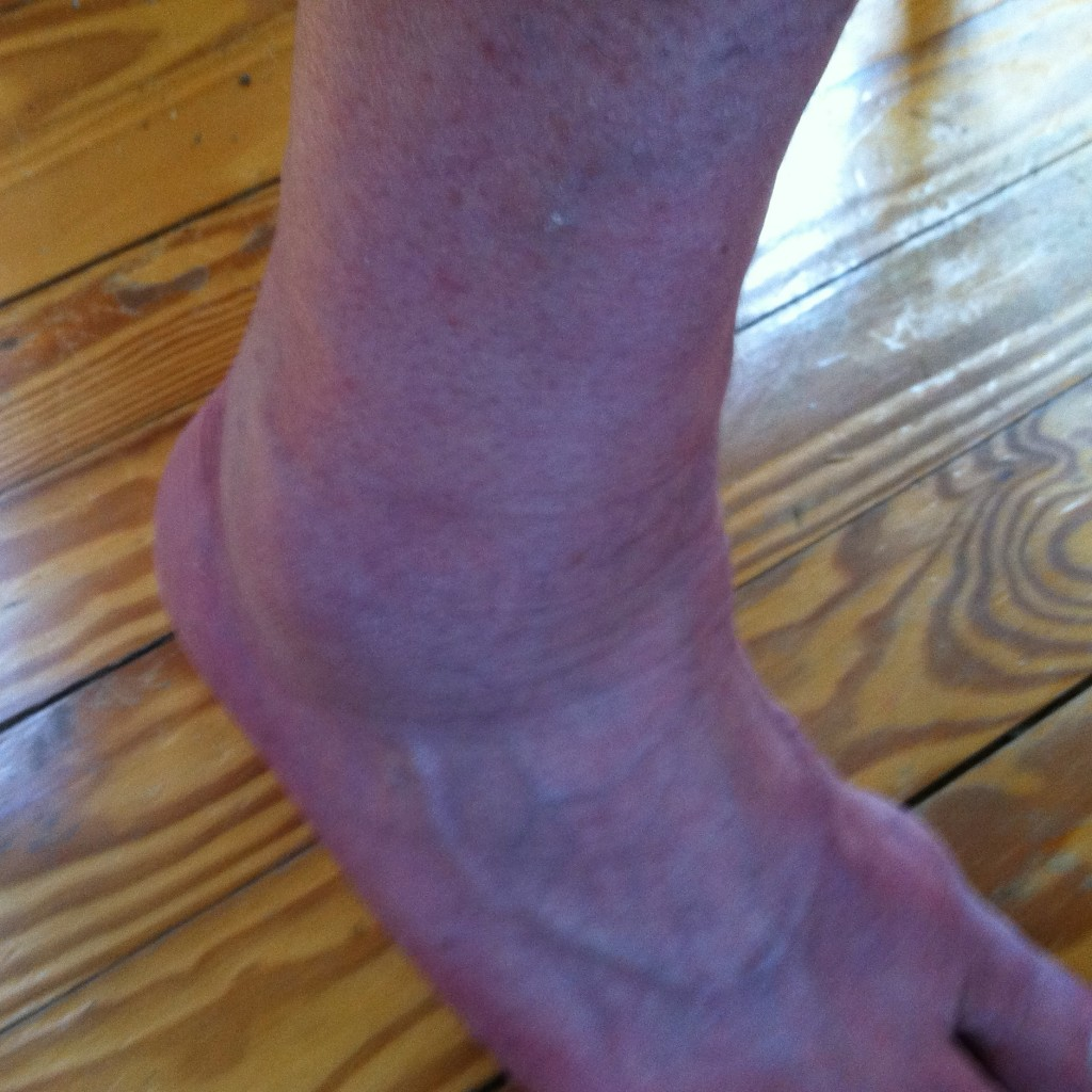 Ugly Ankle